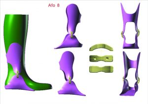 Herreen CADADjust 3D Ankle Foot Orthotic Creation